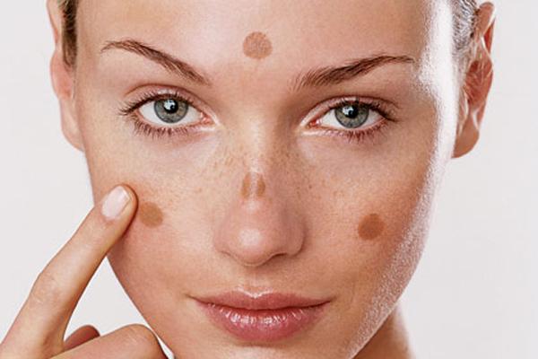Vyparis Spa điều trị nám da mặt hiệu quả nhờ công nghệ mới
