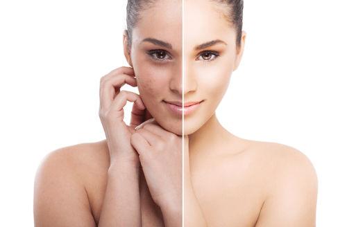 Serum dưỡng da là gì
